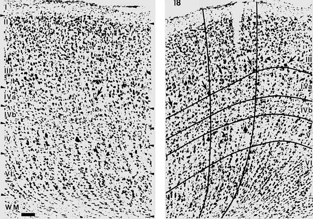 192 A.L. HUMPHREY ET AL. Fig. 1. Cytoarchitectonic (criteria for areas 17 and 18. A. Photomicrograph of a Nissl-stained section of cat area 18 showing the laminar boundaries according to Harvey ('80a).
