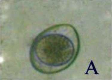 Mature cyst has 4 nuclei; immature cyst has 1 or 2 nuclei. D. Giardia spp cyst (9 7um).