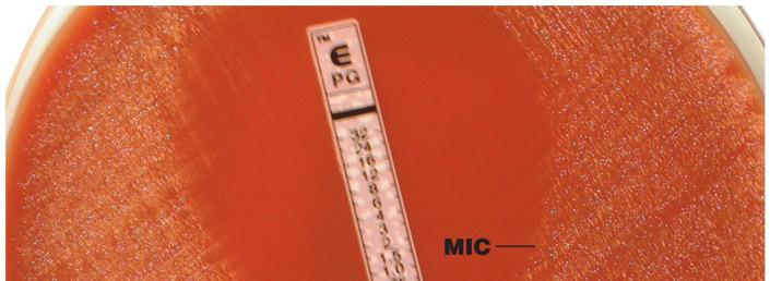 E test measures MIC Broth dilution tests Fig. 20.