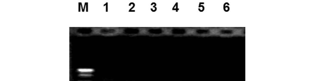 On the other hand PAT mean reciprocal sera antibody titers at 1, 2, 3, 4, 5, 6, 7 and 8 weeks after infection were recorded as 112±13, 200±41, 275±25, 325±48, 425±25, 287±31, 250±29 and 175±25,