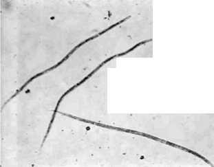 Make a wet preparation (one drop of blood on a slide with a cover slip). Observe under the microscope for movement of microfilariae. b. Perform the modified Knott technique as outlined in the appendix.