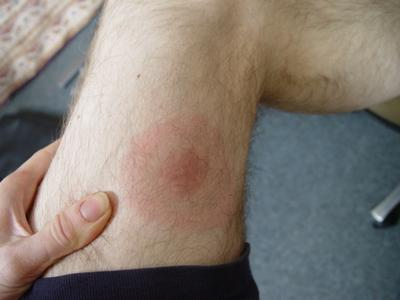 Initial Symptoms of Lyme Disease Appear from three days or as long as a month
