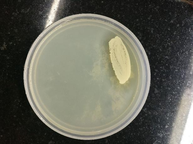 2 Zones around the bacterial colonies indicates