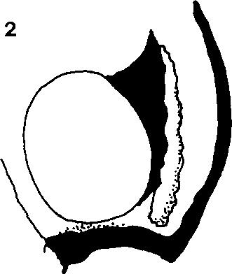 plate of male; 6 - penis valve. Fig. 7: Cephalcia alashanica (Gussakovskij), penis valve of a male from Venetian Prealps (Italy). Scale bar = 1 mm (Figs 1-5), 0.1 mm (Figs 6-7). sockets 0.